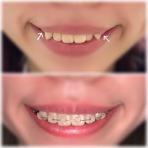 歯列矯正 32日目【笑顔の変化】