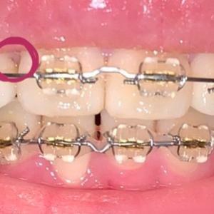 術前矯正96日目 歯のクリーニング