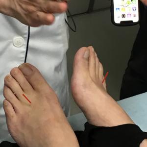 鍼灸師のまかない治療