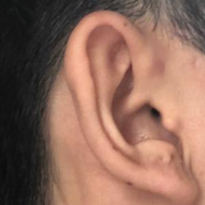 [100人に1人耳の病気] 高校3年手術体験談