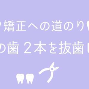 抜歯への道のり6:左の歯2本抜歯した