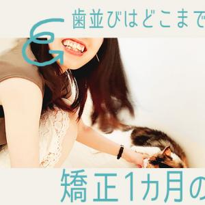 【調整1回目】矯正1ヶ月の歯並びの変化