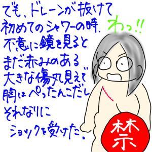 【乳がん】喪失感