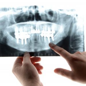 〈まとめ〉Q&A 歯学部の学生生活ver.