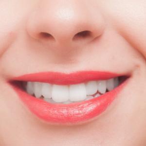 〈Q&A〉なぜ歯は黄色くなるの?ホワイトニングをする前に!