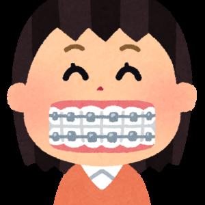 【体験談】ワイヤー歯列矯正のメリット・デメリット【出っ歯】