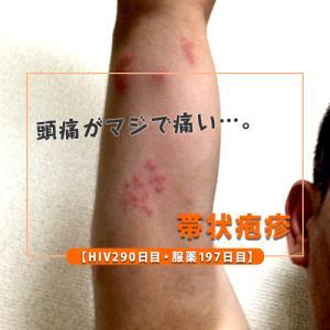 【HIV290日目・服薬197日目】帯状疱疹