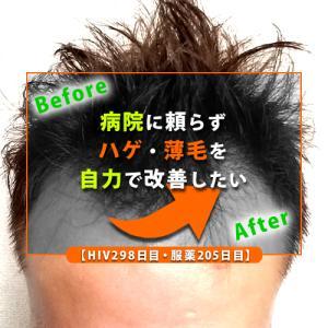 【HIV298日目・服薬205日目】病院に頼らずハゲ・薄毛を自力で改善したい