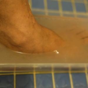 汗疱を塩で治す2021 その2足編