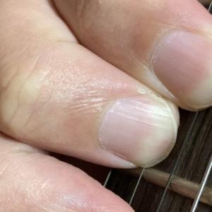 コードというよりも、俺の指がおかしい。