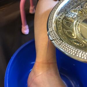 足の痛みにダーラー