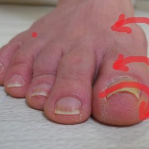 足の爪・親指の爪が剥がれる(爪甲剥離)