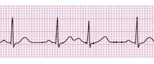 心電図 心房期外収縮(PAC)と心室期外収縮(PVC)