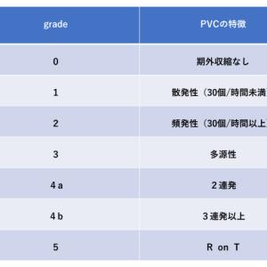 心電図 心室期外収縮(PVC)の色々なパターン
