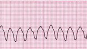 心電図 心室頻拍(VT)と心室細動(VF)