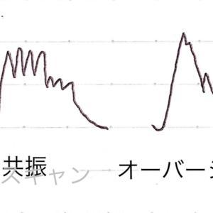 動脈圧波形の意味 Aライン波形
