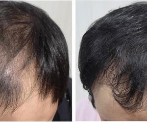 【間違った薄毛治療】薄毛が治らない理由とは