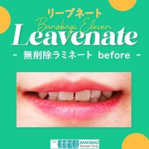 無削除ラミネートの症例写真「韓国イレブン歯科のリーブネート」