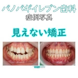 裏側矯正の症例写真「韓国矯正専門のイレブン歯科」