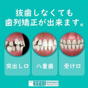 突き出し口、受け口、八重歯の矯正も非抜歯でOK!