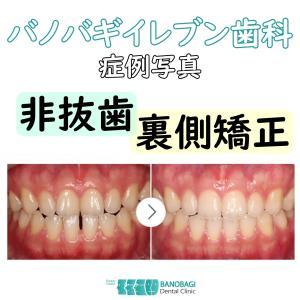 非抜歯による裏側矯正の矯正治療写真です。