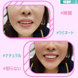 患者様の歯が綺麗すぎ!秘訣はラミネート