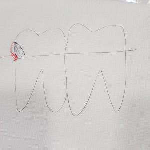 歯の補綴物が良く取れる?