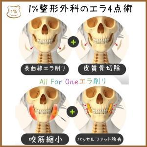 「韓国輪郭手術専門」1%整形外科のエラ4点セットのポイントは長曲線切り!