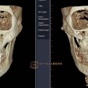 韓国美容整形症例|輪郭手術による骨の変化!