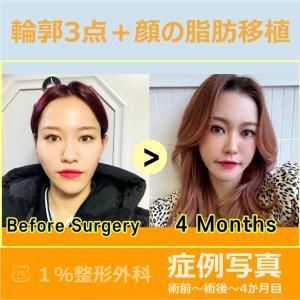 輪郭3点と顔の脂肪移植の症例写真です。