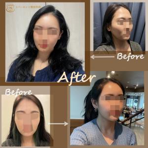 頬骨縮小+脂肪移植+脂肪吸引のレビュー 韓国1%整形外科