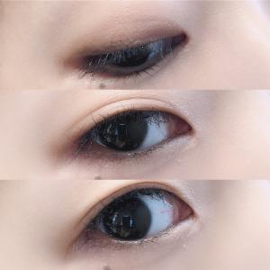 ナイトアイボーテ使用して約1ヶ月の右目と左目