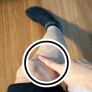 膝の痛み解消法★腸脛靭帯(ちょうけい靭帯)圧迫痛の解消★ランナー膝と諦める前にやっておきたい筋トレ