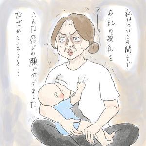 乳トラブル