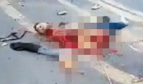 【バイク事故】どうなったらここまで人体が破壊されるの?