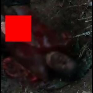 【超グロ】男が「生きたまま解剖」される地獄。伝説の動画