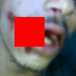 拳銃の弾丸が、口を貫通してしまった男がこちら→