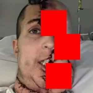 【画像】事故や病気でヤバい姿になった人達。かなり閲覧注意!