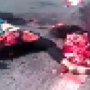 【閲覧注意】バスに轢かれバラバラになった歩行者の女性