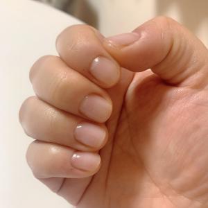 爪の白いところ、ギリギリまで切ってません?深爪矯正、その後。