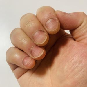 【画像付き】深爪矯正約4ヶ月の記録。