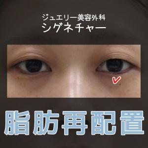 「目下」脂肪再配置(涙袋の脂肪移植)・ジュエリー美容外科☆シグネチャー術