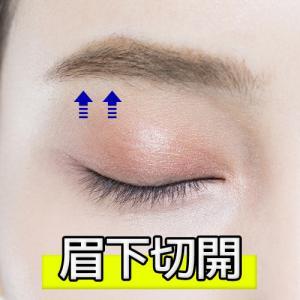 「目」:眉下切開 韓国(上眼瞼リフト/眉下リフト/ブローリフト/アイリフト)