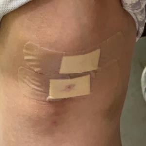 ワクチン打って▶️転んで擦りむいて▶️副作用?