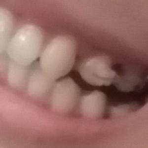 ⚡🦷歯に頭突き🦷⚡