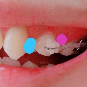 歯がめっちゃ動いてる!
