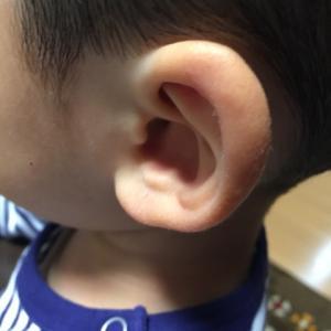 鼓膜へのチューブ挿入は治りにくい中耳炎に対して必要か?