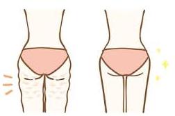 お尻の肉割れ(妊娠線)は気づかないうちに出来てます(苦笑)治すには・・・