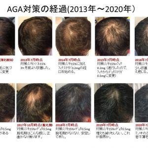 AGA(男性型脱毛症)対策 ベスト3