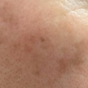 自宅で右頬の「シミ取り」(3週間経過 シミが薄くなりました!!)